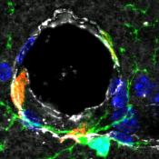 Un institut de recherche dédié aux interactions Sang et Cerveau