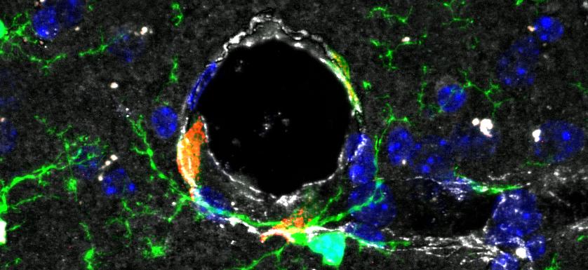 You are currently viewing Un institut de recherche dédié aux interactions Sang et Cerveau