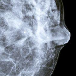Le Mammobile sillonnera la Normandie pour dépister le cancer du sein