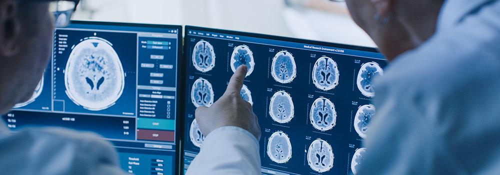 You are currently viewing De mini-tumeurs cancéreuses recrées en laboratoire